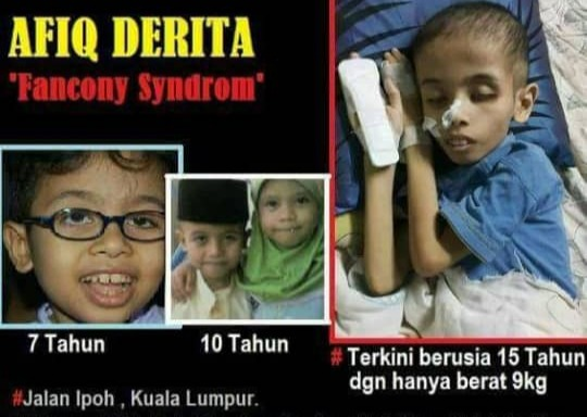 Afiq Fanconi Syndrome